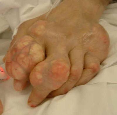 Gout Symptoms Big Toe