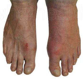 high uric acid vegetables acute gout in ankle homeopathic meds for gout